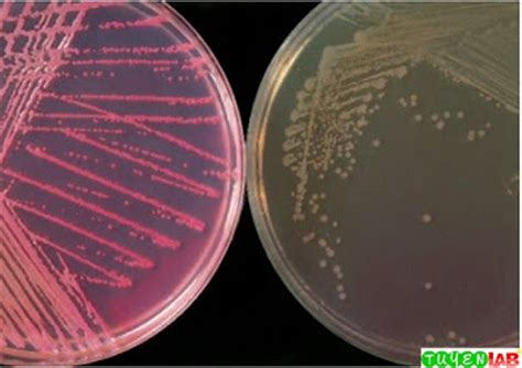 [Microbiology] Atlas of Gastrointestinal Infections and