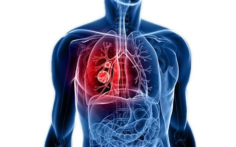 Pulmonary Medicine | Our Specialty at SevenHills Hospital